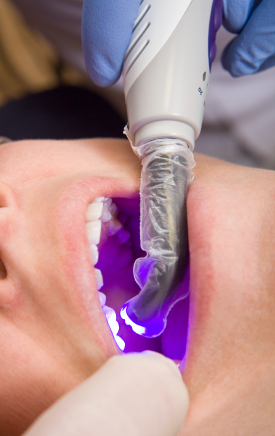 White fillings procedure being done in asheboro nc
