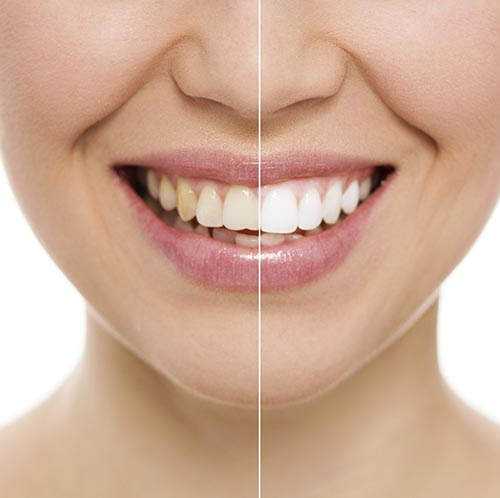 Teeth Whitening Ashboro NC